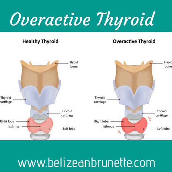 overactive thyroid, underactive thyroid