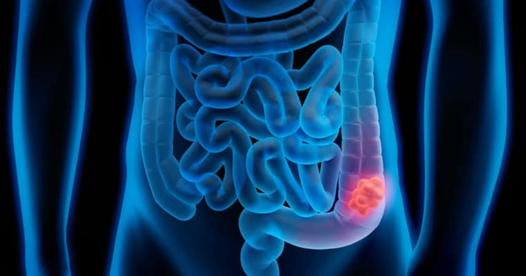 12 Benefits of a Colon Cleanse